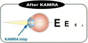 KAMRA Inlay after
